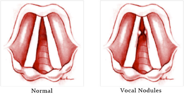 Noduli alle corde vocali